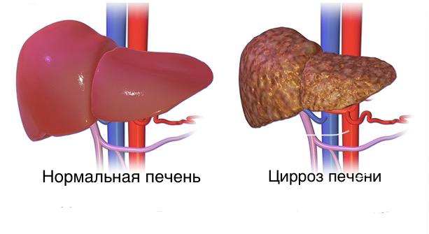 Влияние конопли при гепатите с thumbnail